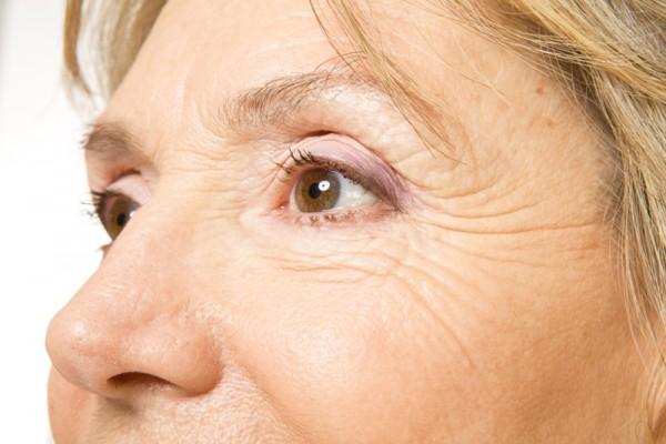 Błona śluzowa nosa jest bardzo wrażliwa. Po zadziałaniu czynnikami drażniącymi, wysycha i pokrywa się strupami. /fot. Fotolia
